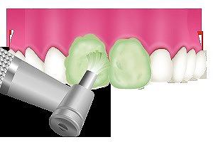 歯の汚れを落とすクリーニング