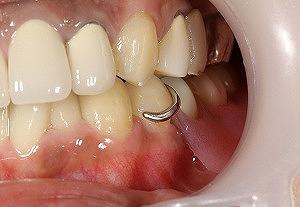従来の入れ歯