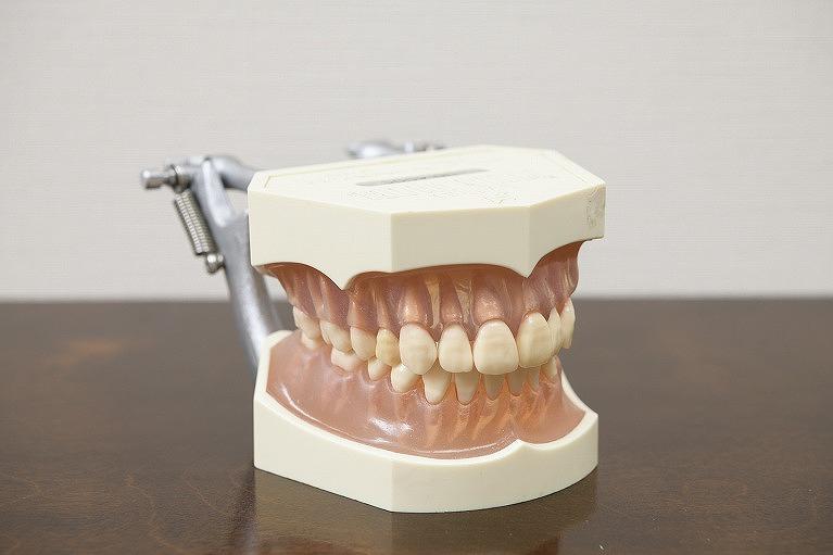 矯正歯科を始める時期